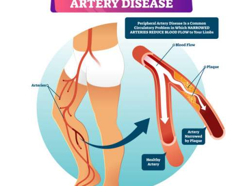 Stay Safe From Peripheral Arterial Disease