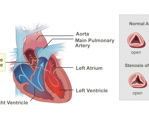 Valves Of The Heart and Aortic Stenosis