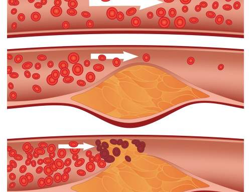 Cholesterol Level Should Always Be Balanced Know Why
